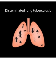 Disseminated tuberculosis on vector image