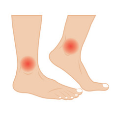 Ankle joint pain treatment vector