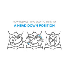 Turn baby to a head down position in the womb vector