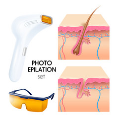 Photo epilation realistic set vector