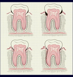 inflammation of the gums vector image