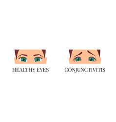 woman with conjunctivitis vector image vector image