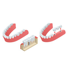 isometric tooth human implant dental concept vector image vector image