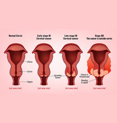 Cervical cancer image vector