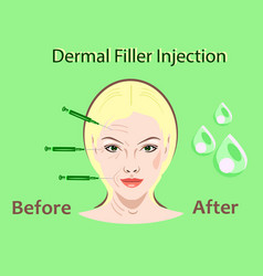 cosmetic surgery filler vector image
