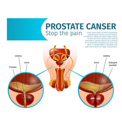 Prostate cancer cancerous tumor cells in gland vector