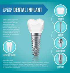 teeth maquette structural elements dental vector image