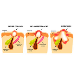Types of acne closed comedones inflammatory acne vector