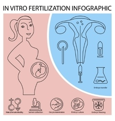 In vitro fertilization infographic vector