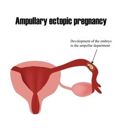 Development of the embryo in the ampullar vector