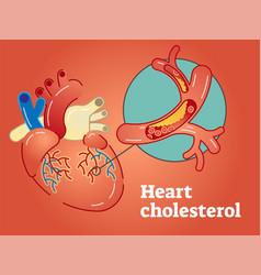 Heart cholesterol concept vector
