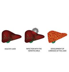 Consequences hepatitis cirrhosis liver vector