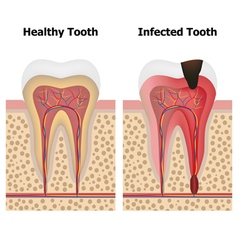 Pulpitis and healthy tooth vector