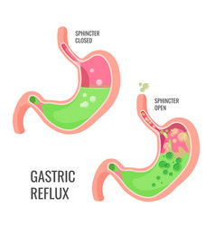Gastric reflux medical promo poster with human vector