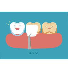Veneers teeth of dental vector