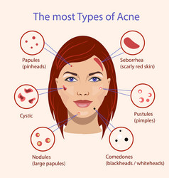 different type of acne with vector image