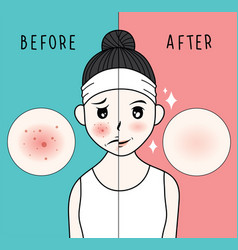 woman face acne before and after vector image