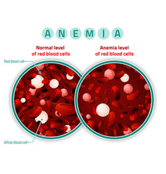 anemia level of blood cells vector image
