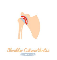 Shoulder osteoarthritis icon vector