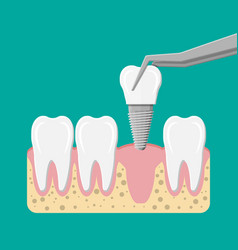 installation of the dental implant vector image vector image