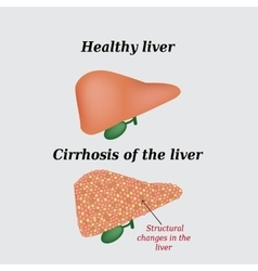 Cirrhosis of the liver on a vector