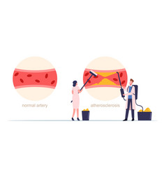 Tiny medic characters cleaning human blood artery vector