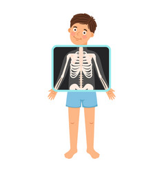 Cartoon boy patient xray vector