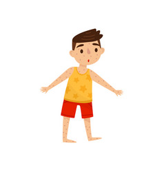 little kid with rash on his body boy with measles vector image
