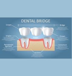 Dental bridge concept educational poster vector