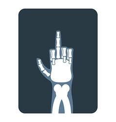 X-rays to Bones hands show thumbs up Obscene vector image vector image