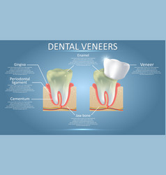 dental veneers diagram educational poster vector image