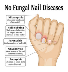 No fungal nail disease vector