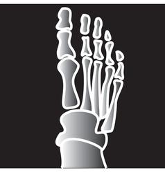Xray broken bones vector image vector image