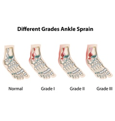 Different grades of ankle sprains1 vector image