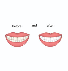 Whitening - female teeth before and after vector