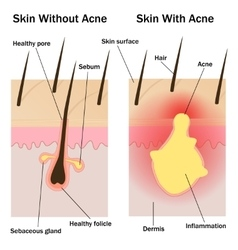 Skin with and without acne vector image vector image