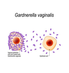 gardnerella vaginalis vaginal epithelial clue vector image