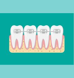 teeth braces flat vector image vector image