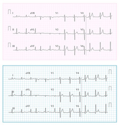 Heart cardiogram chart set healthy heart vector