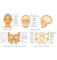 Sinuses of nose vector