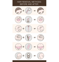 Infographic of hair removal methods vector