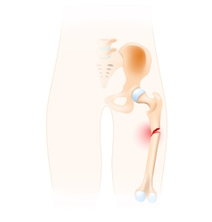 Fractured femur vector