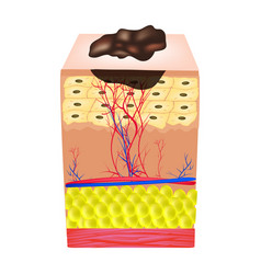 the structure of the nevus the structure of moles vector image