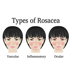 Types of rosacea vector