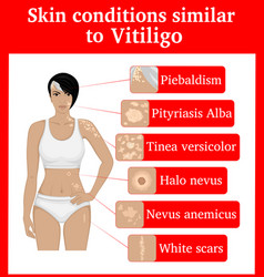 Skin conditions having an external resemblance to vector