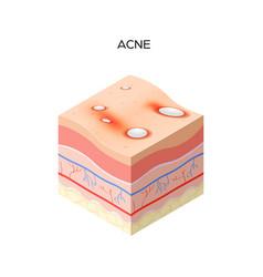 Acne vulgaris or pimple cross-section human vector