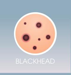 Skin blackhead pimples acne type face pore vector
