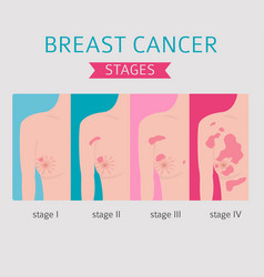 Breast cancer medical infographic diagnostics vector