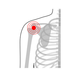 Human shoulder joint pain anatomy vector