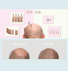 Human alopecia or hair loss - adult man hand vector
